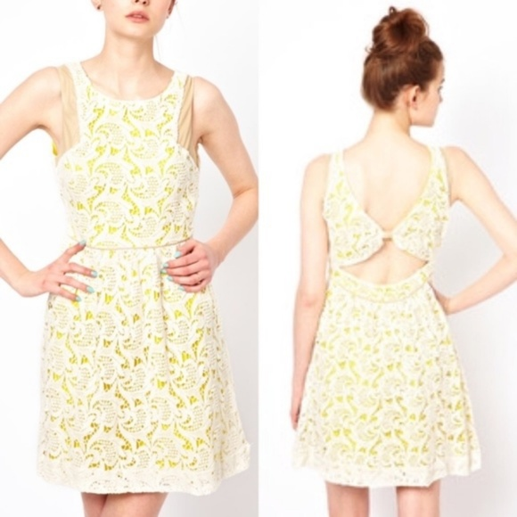 ASOS Dresses & Skirts - ASOS Anthro Valencia Lace Dress w Open Back Leathe